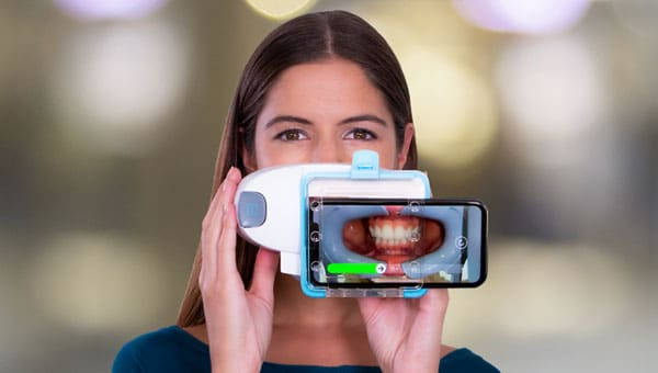 Dental Monitoring Brace Connection in Downey, CA