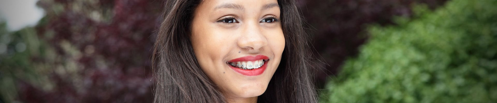 Types of braces Brace Connection in Downey, CA